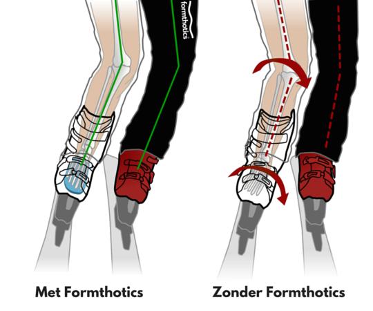 Formthotics Ski